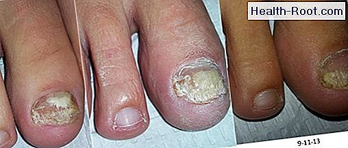 Can Tea Tree Oil Be Used To Cure Nail Fungus Disease Symptoms Treatment 2020