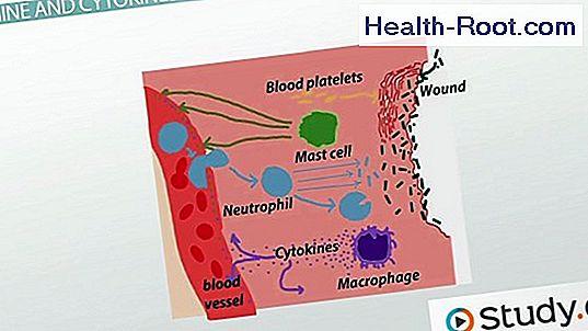 skillnaden mellan infektion och inflammation